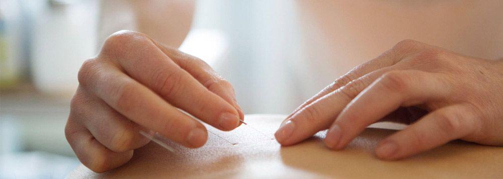Acupuncture Near Me: 8 Best Acupuncturists in Manhattan ...