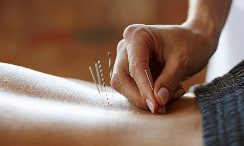 9 Best Acupuncturists in Chicago